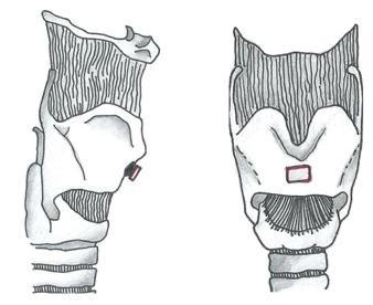 recorte comisura anterior